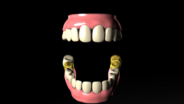 Bertram_teeth_06_26_2015.png