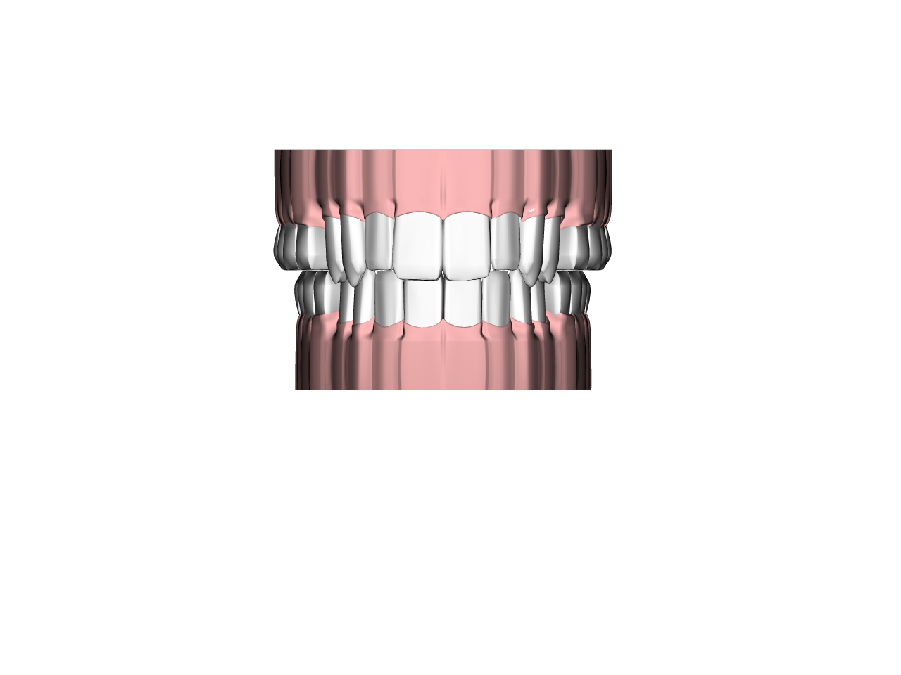Teeth and gums0.png